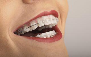 Aparatul dentar Safir vs Invisalign. Beneficii și avantaje
