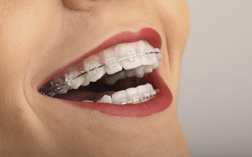 Femeie care zambeste cu apart dentar Safir