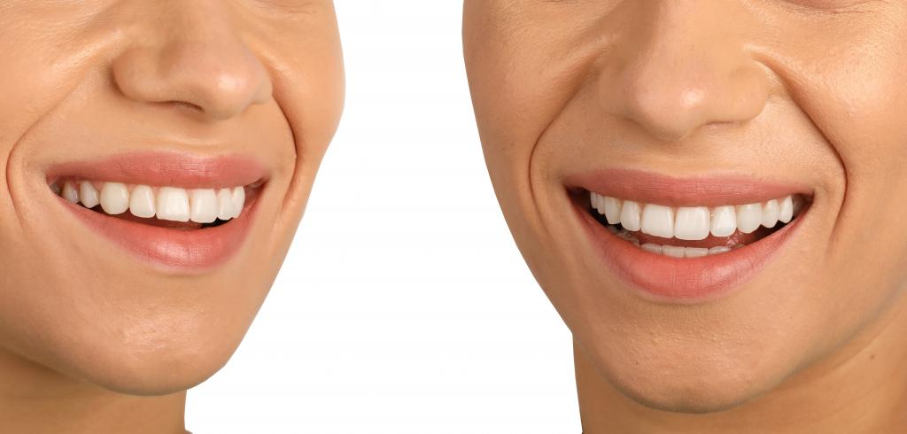 Un aparat dentar invizibil transforma zambetul intr-unul increzator
