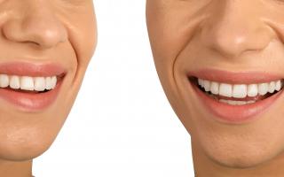 Aparat dentar invizibil. De câte tipuri poate fi și cum funcționează?