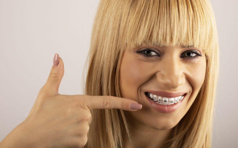 femeie care zambeste si arata cu degetul spre aparatul sau dentar