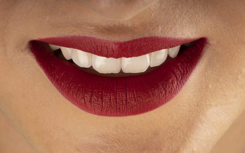 Alimentele sanatoase cu vitamine pentru dinti ofera un zambet perfect