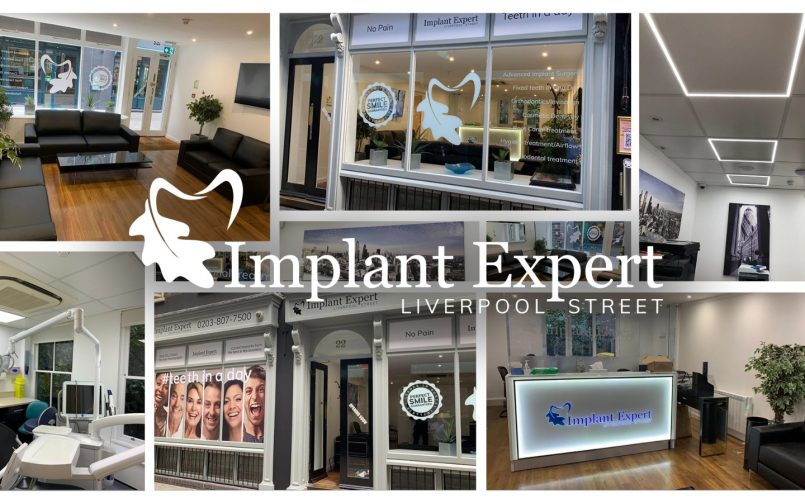 Clinica Dr. Leahu din Londra Implant Expert Liverpool Street