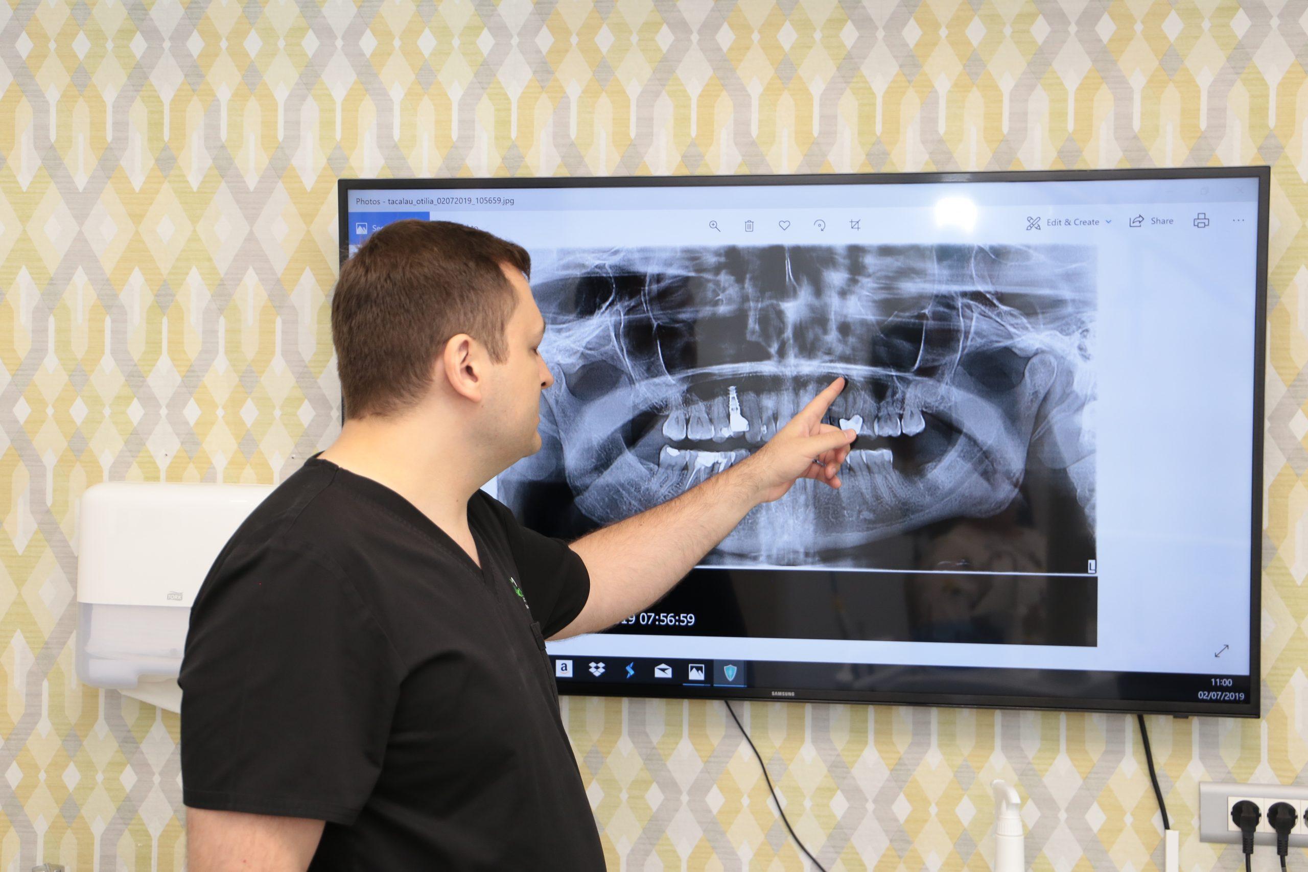 Dr. Ionut Leahu aratand spre un ecran cu o radiografie dentara