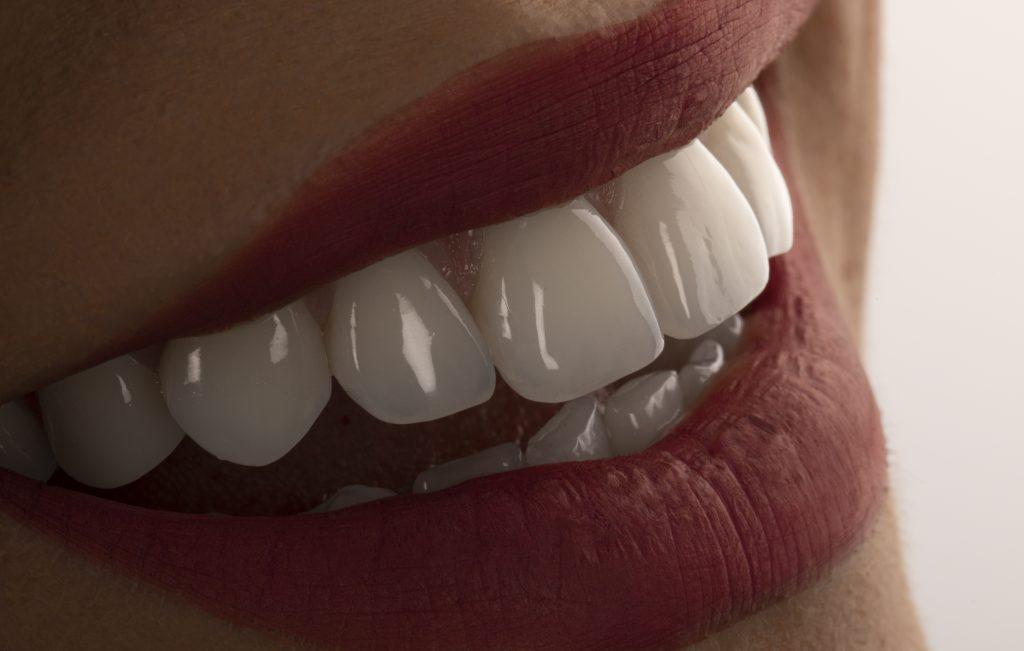 zambet perfect oferit de alimente sanatoase pentru dinti