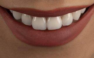 Periaj dentar corect. Ce presupune și cum ajută igiena orală?
