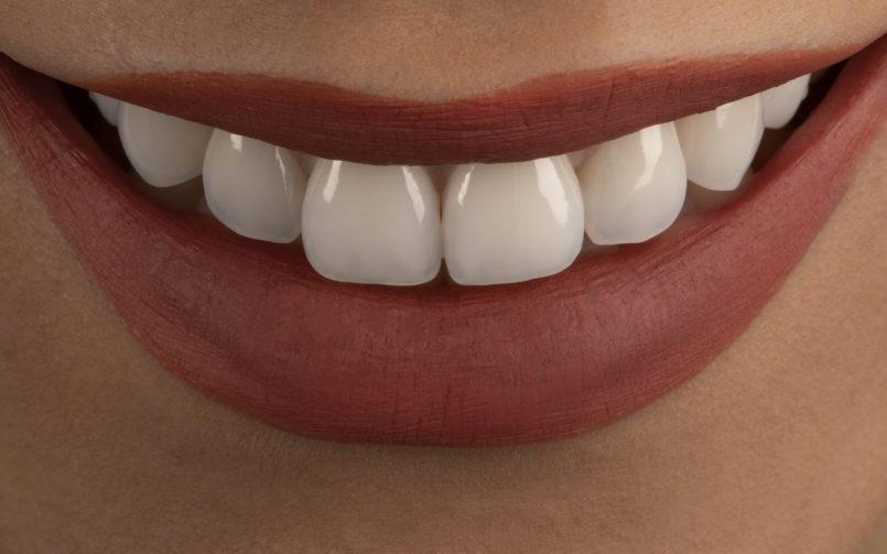 zambet perfect dupa periaj dentar corect