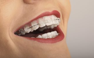 Ce alimente sunt interzise în timpul purtării unui aparat dentar?
