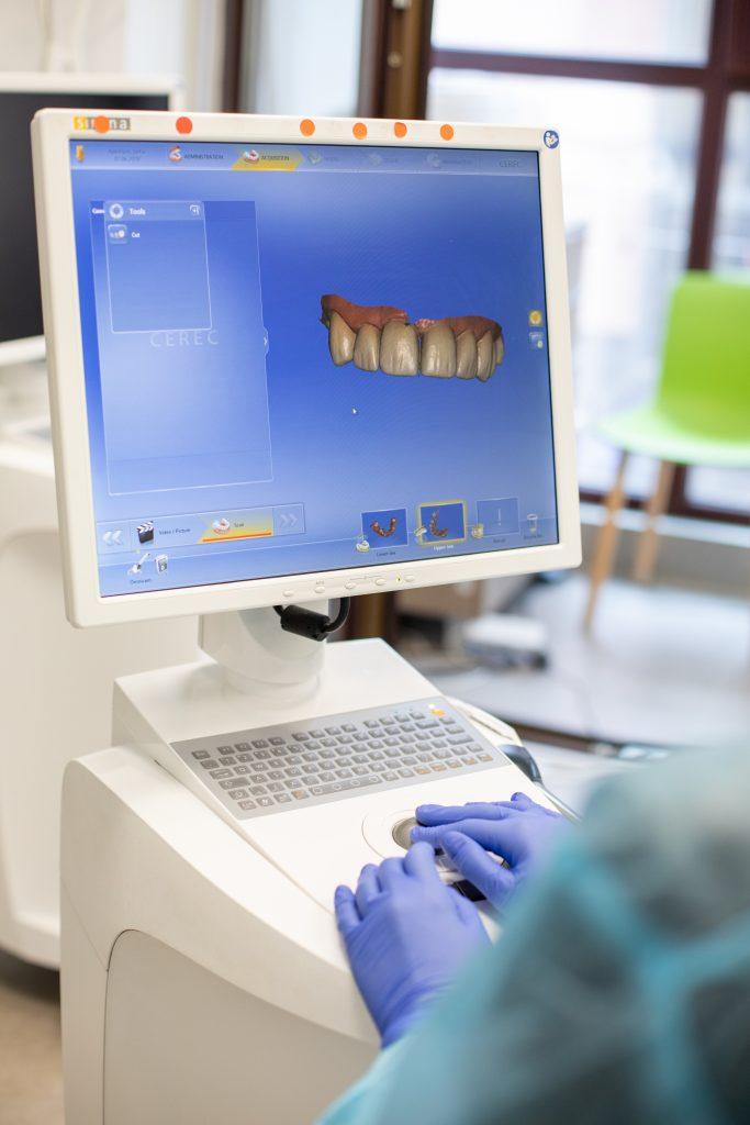 ecran aparat CEREC CAD/CAM pentru creare fatete dentare
