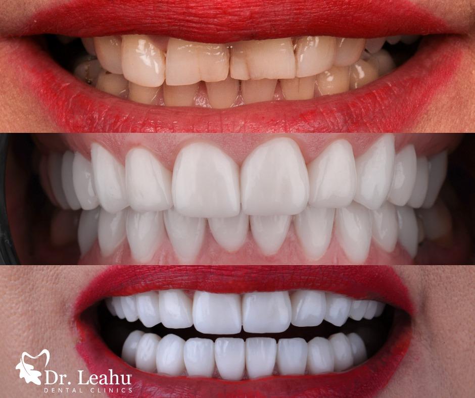 zambet inainte si dupa fatetarea dintilor