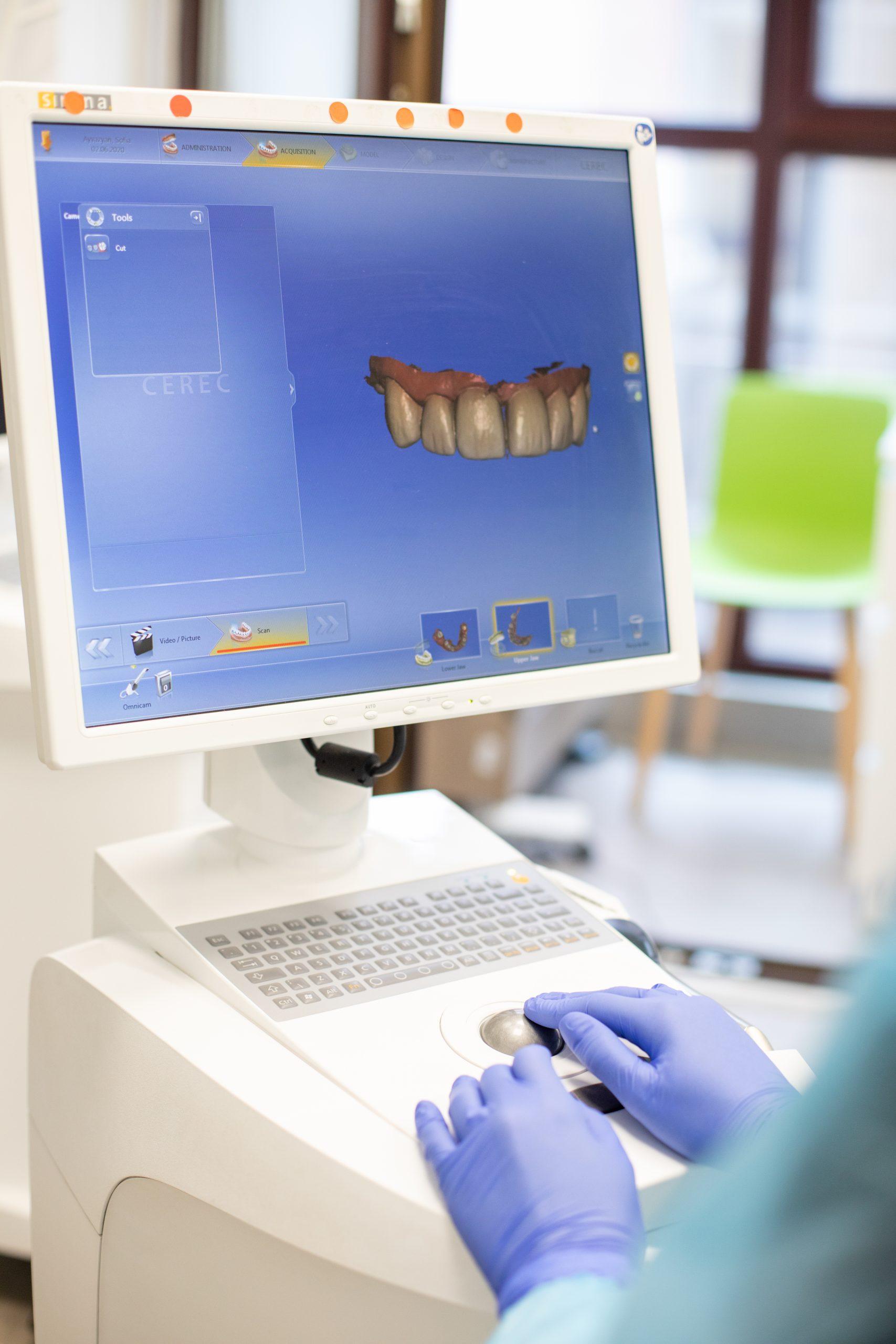 fatetarea dintilor realizata  digital, pe calculator