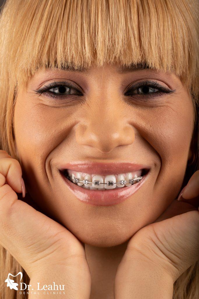 femeie cu mainile sub barbie care zambeste cu aparat dentar