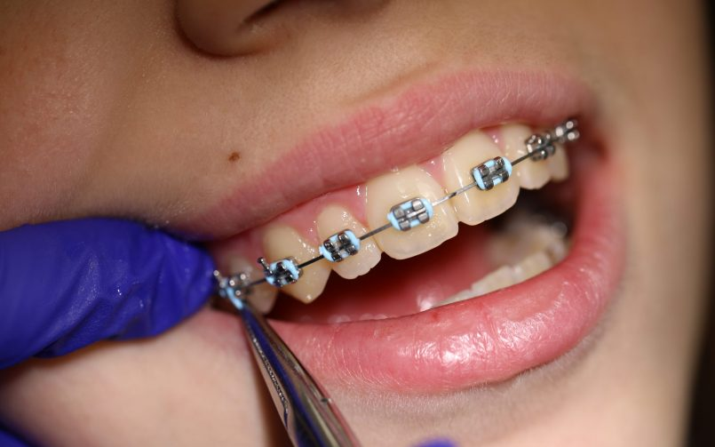 montarea elasticelor pentru aparat dentar nu doare
