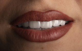 Fațete dentare, preț în 2021. Cât te costă să-ți refaci zâmbetul ?