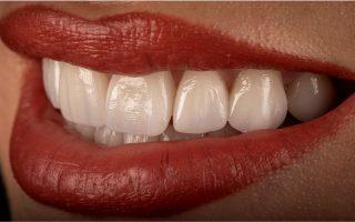 Culoarea naturală a dinților. De ce o pierzi și cum poți să o recapeți?