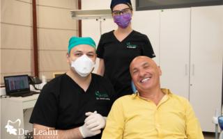 Tipuri de coroane dentare și avantajele lor în protetica dentară